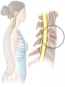 Anterior cervical fusion